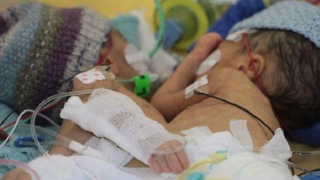 Тим часом у світі: у  Швейцарії вперше успішно розділили восьмиденних сіамських близнюків