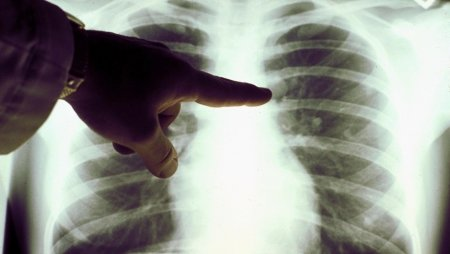 В Україні лютує вірусна пневмонія. Що це за хвороба?